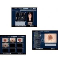 Oprogramowanie medyczne Photo-Max program do analizy dermatoskopowej (analiza dermatoskopowa)