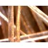 Trichoskop Dino-Lite (VideoTrichoskop)