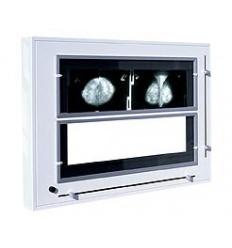 Negatoskop NGP - 31 MZ do mammografii (NGP-31MZ)