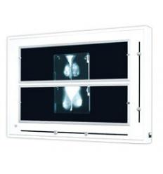 Negatoskop NGP - 41 MZ do mammografii (NGP-41MZ)